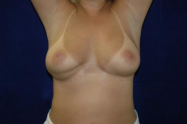 увеличение груди казань цены